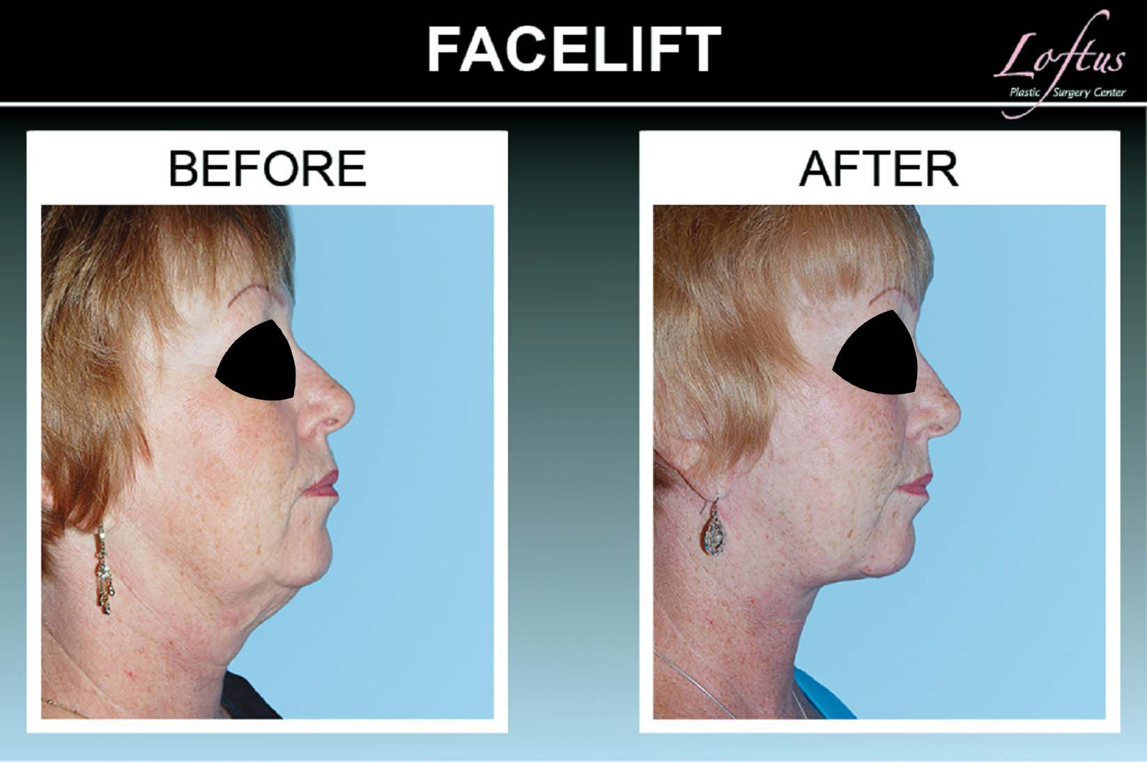 Before and after facelift photos Face Lift Before And After Photos - Dr Daniel Lanzer