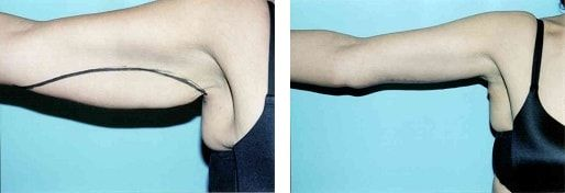 Scars From Upper Arm Lifts : Arm lift brachioplasty