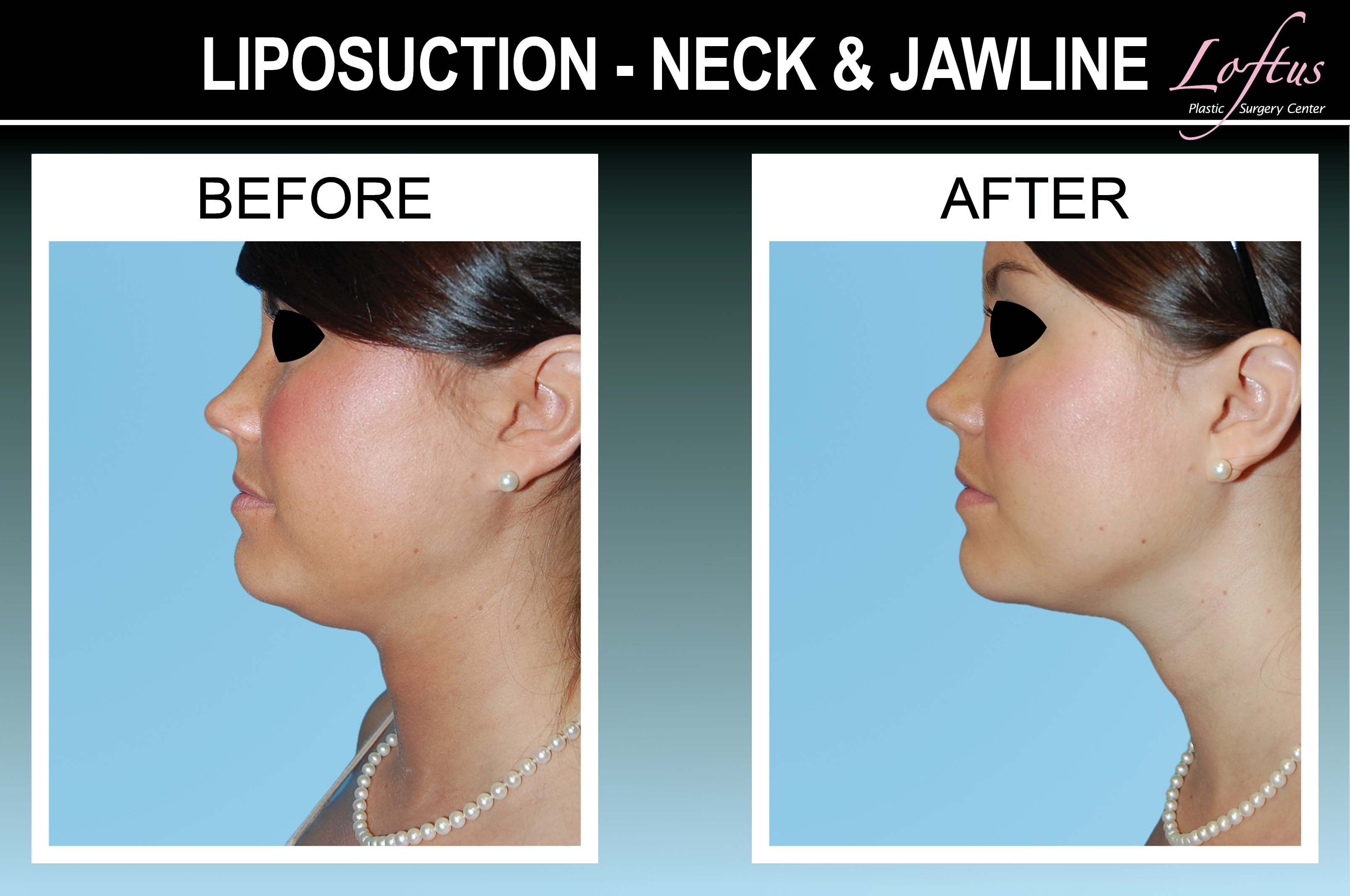 meet a55b4 04701 Neck Lipo Before and After Photos